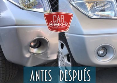antes-despues01
